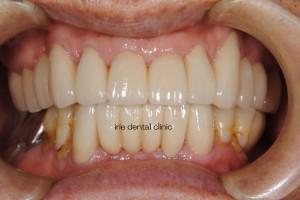implant postop